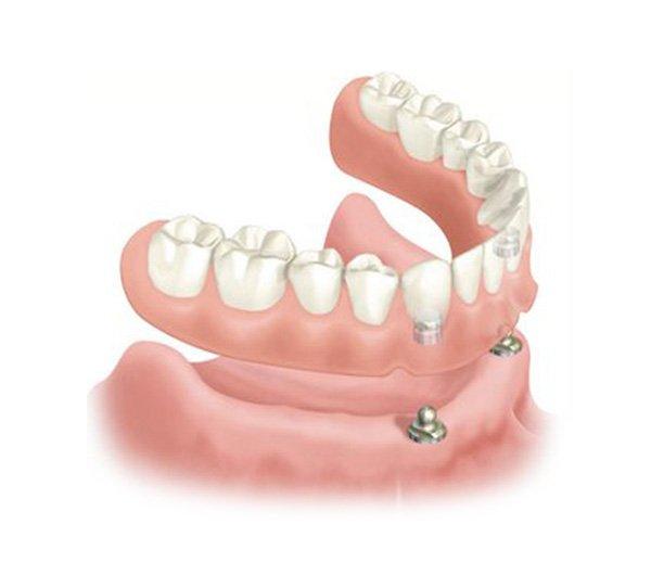 Prothèse dentaire sur implants supérieure et ou inférieure